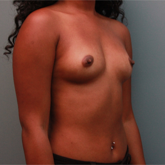 26 year old had her breast volume increased with 435cc Sientra Silicone Breast Implants before 3544330