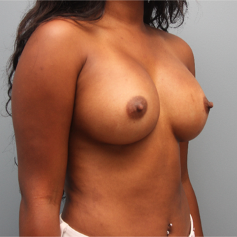 26 year old had her breast volume increased with 435cc Sientra Silicone Breast Implants after 3544330