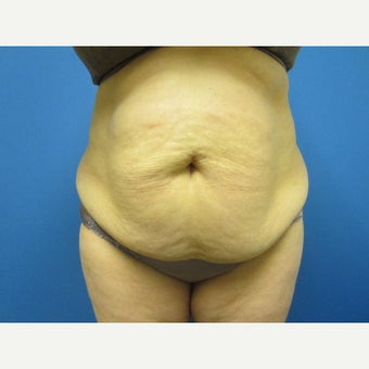 45-54 year old woman treated with Tummy Tuck before 1847056