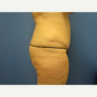 45-54 year old woman treated with Tummy Tuck 1847056