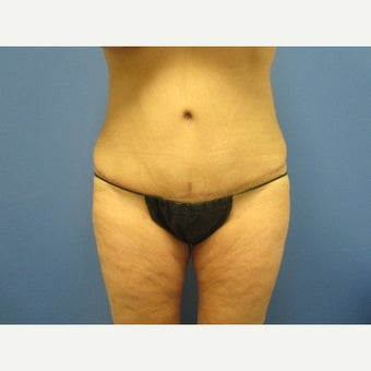 45-54 year old woman treated with Tummy Tuck after 1847056