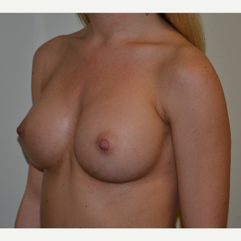 325cc Moderate Plus Profile Silicone Cohesive Gel Implants after 3840009