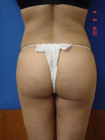 Brazilian Butt Lift after 1493373