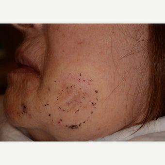 Large facial melanoma excision before 1747606