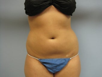 Liposuction of Abdomen and Waist before 762385