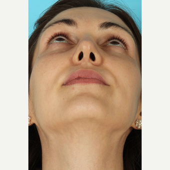 25-34 year old woman treated with Rhinoplasty after 3690829
