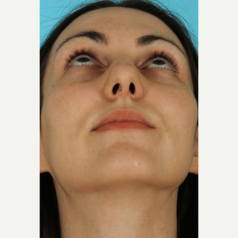 25-34 year old woman treated with Rhinoplasty before 3690829