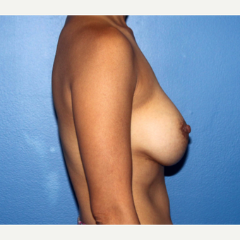 35-44 year old woman treated with Breast Implant Revision after 3366901