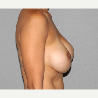 35-44 year old woman treated with Breast Implant Revision before 3366901