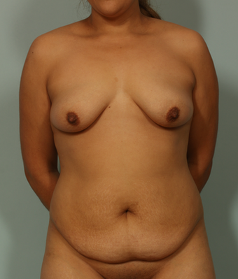 37 Year Old Female before 1158662