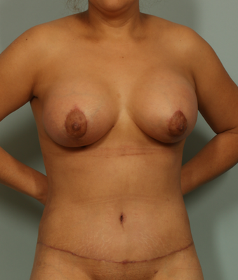37 Year Old Female after 1158662