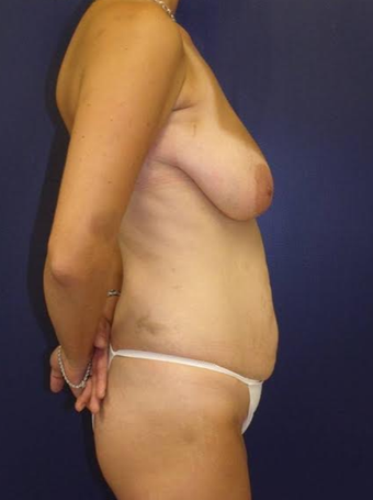Tummy Tuck before 1563416