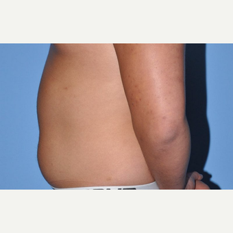 18-24 year old man treated with Liposuction before 3258356