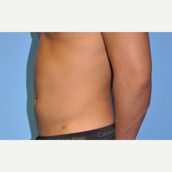 18-24 year old man treated with Liposuction after 3258356