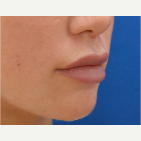18-24 year old woman treated with Lip Augmentation after 2725427