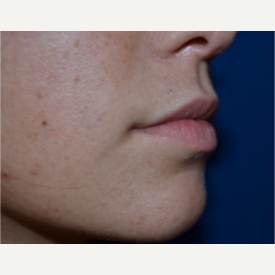 18-24 year old woman treated with Lip Augmentation before 2725427