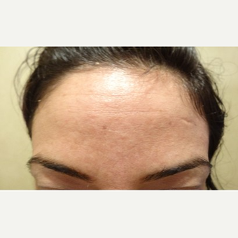 25-34 year old woman treated with Xeomin after 3744560