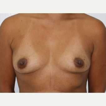 35-44 year old woman treated with Breast Augmentation before 3696011