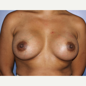 35-44 year old woman treated with Breast Augmentation after 3696011