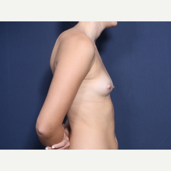 18-24 year old woman treated with Breast Augmentation (view 2 of 2) before 3220378