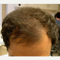 38 year old man treated with FUE Hair Transplant after 3763974