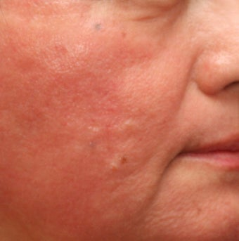 Fraxel Repair for indented Acne Scars after 110207