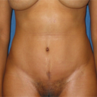 Tummy Tuck on 35 year old mother of 2 after 3259196