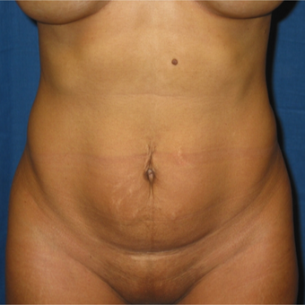 Tummy Tuck on 35 year old mother of 2 before 3259196