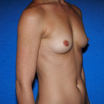 25-34 year old woman treated with Breast Augmentation before 3497264