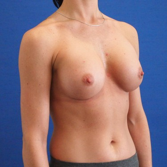 25-34 year old woman treated with Breast Augmentation after 3497264