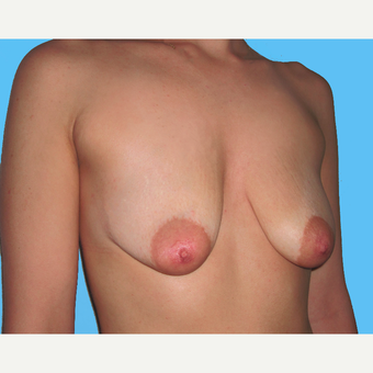 Breast Lift with Implants before 3748928
