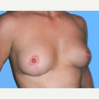 Breast Lift with Implants after 3748928