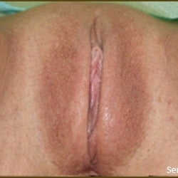25-34 year old woman treated with Vaginoplasty after 2155258