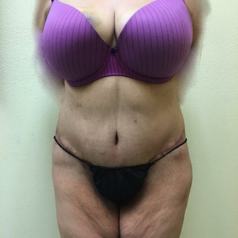 35-44 year old woman treated with Tummy Tuck and Liposuction after 3466478