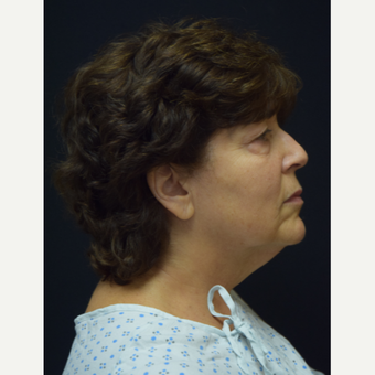65-74 year old woman treated with Facelift before 3376566