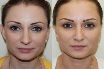Otoplasty Surgery. before 1075795