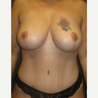35-44 year old woman treated with Breast Lift after 3253154
