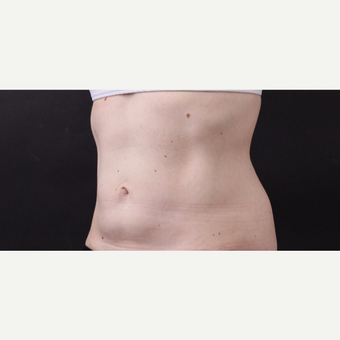 49 year old woman treated with CoolSculpting after 3630240