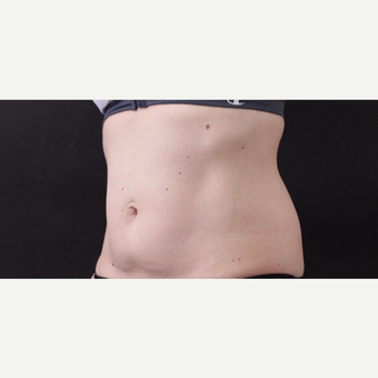 49 year old woman treated with CoolSculpting before 3630240
