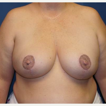 44 year old woman treated with DIEP flap Breast Reconstruction after 3383417