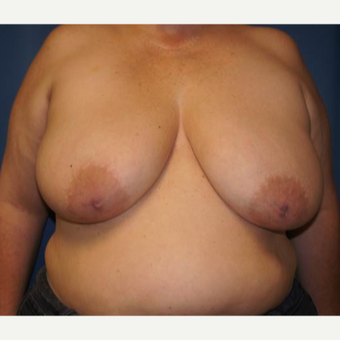 44 year old woman treated with DIEP flap Breast Reconstruction before 3383417