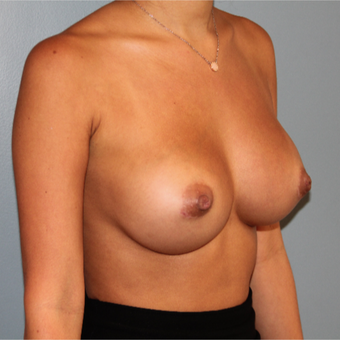 28 year old woman had Breast Augmentation with Inverted Nipple Correction after 3467453