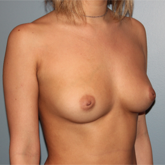 28 year old woman had Breast Augmentation with Inverted Nipple Correction before 3467453