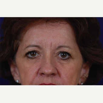 55-64 year old woman treated with Eyelid Surgery before 3423612