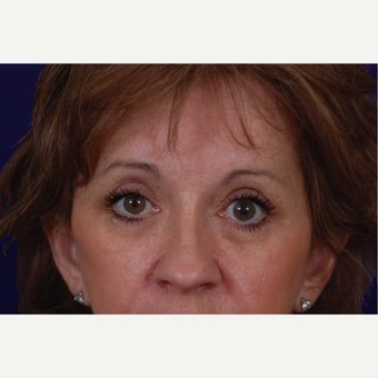 55-64 year old woman treated with Eyelid Surgery after 3423612