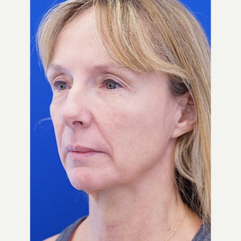 45-54 year old woman treated with Facelift before 3653507
