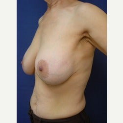 55-64 year old woman treated with Breast Implants before 2129477