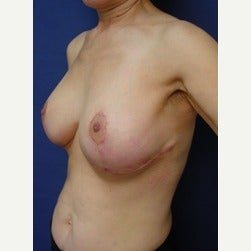 55-64 year old woman treated with Breast Implants after 2129477
