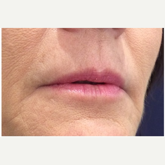 45-54 year old woman treated with Juvederm before 3702367