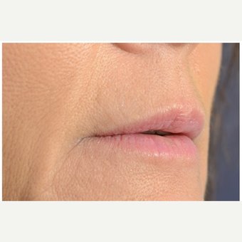 45-54 year old woman treated with Juvederm after 3702367